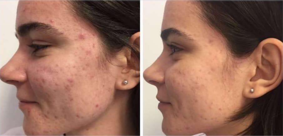 scapa de acnee